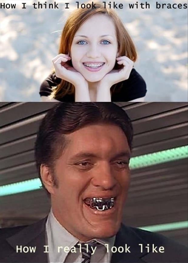 Best of Expectation Vs Reality Pictures-braces