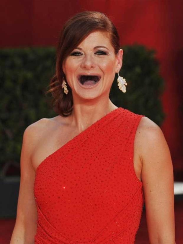 celebrities without teeth, funny dumpaday pictures (10)