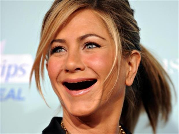 celebrities without teeth, funny dumpaday pictures (20)