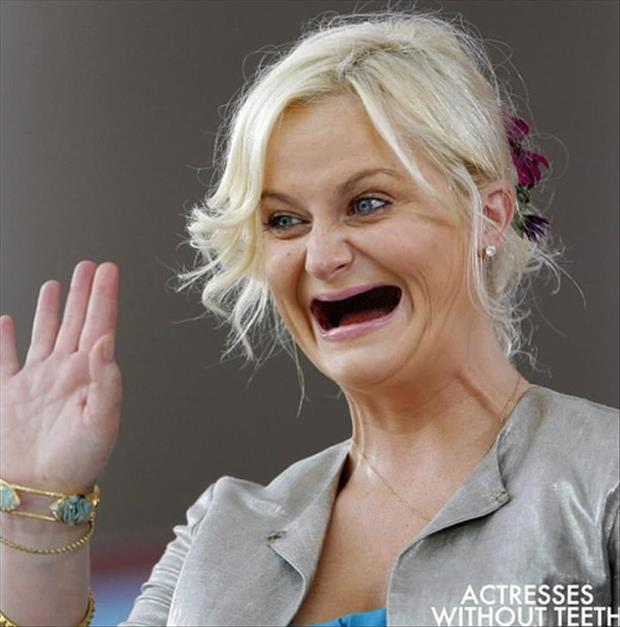celebrities without teeth, funny dumpaday pictures (4)