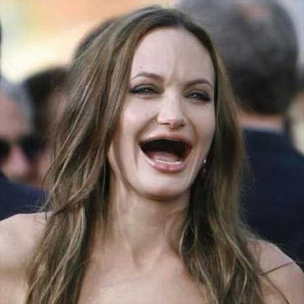 celebrities without teeth, funny dumpaday pictures (7)