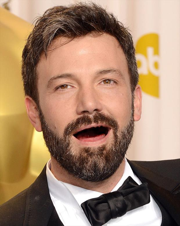 celebrities without teeth funny pictures (10)