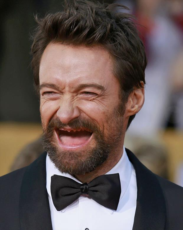 celebrities without teeth funny pictures (3)