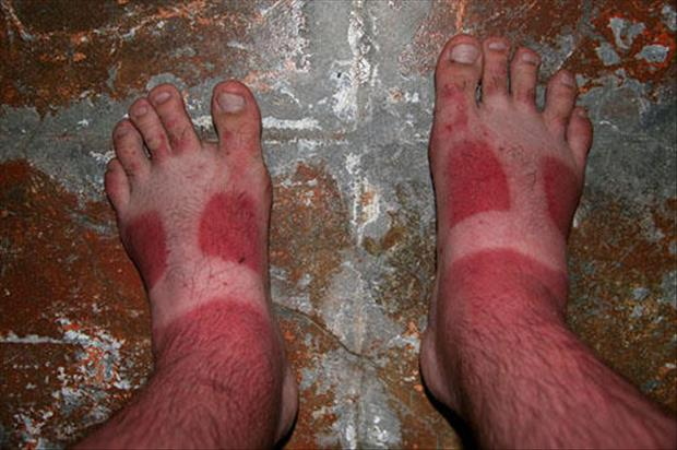 sunburn pictures, dumpaday (15)