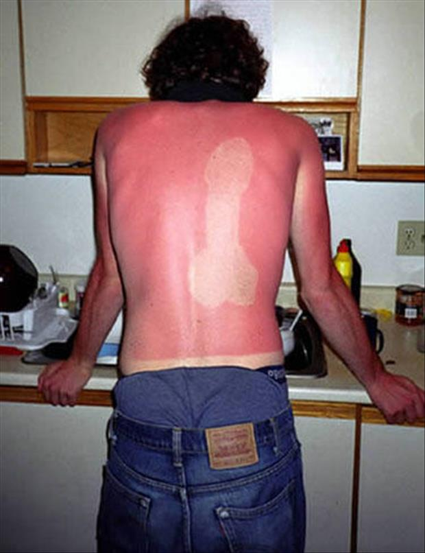 sunburn pictures, dumpaday (20)