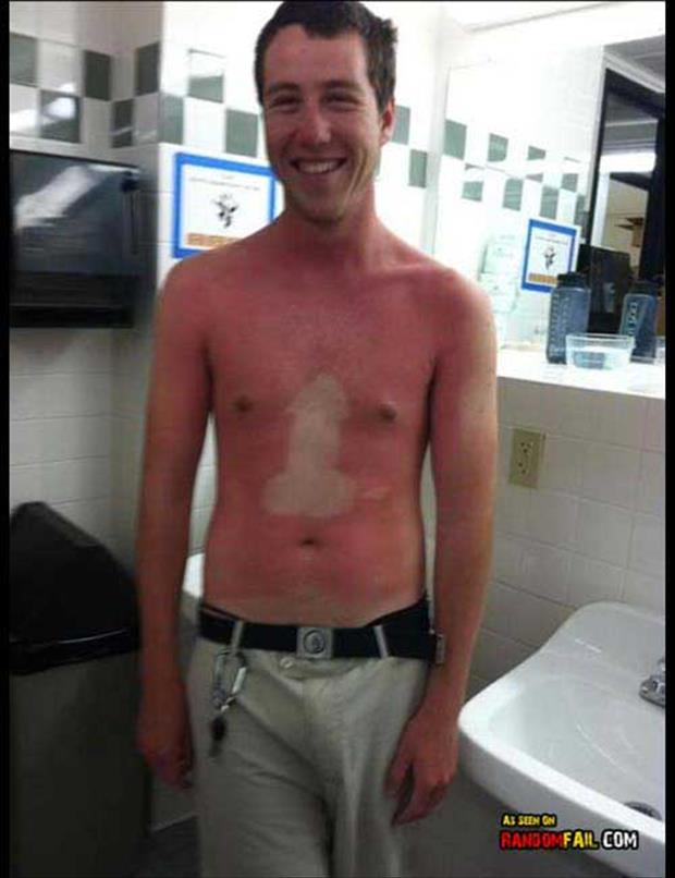 sunburn pictures, dumpaday (8)