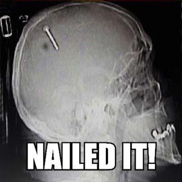 nailed it funny x rays