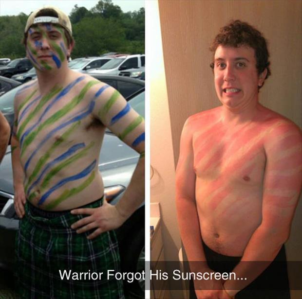 forgot to wear sunscrean