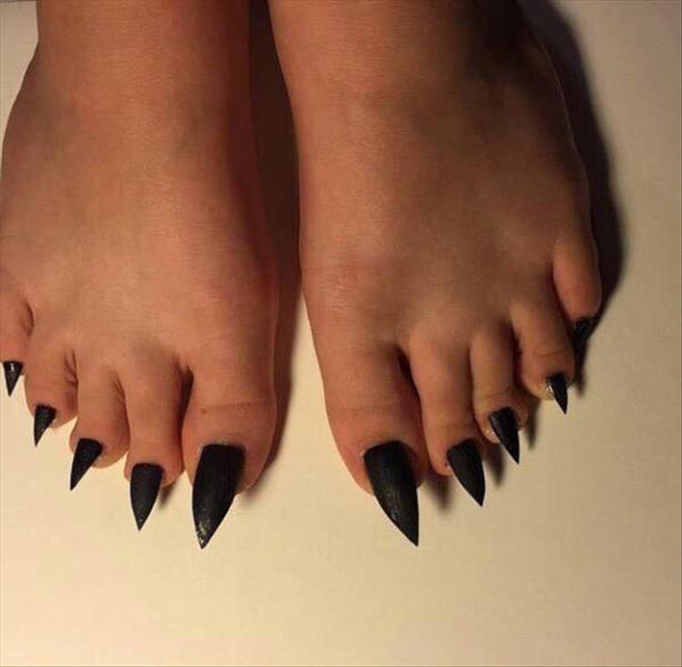 sharp toenails