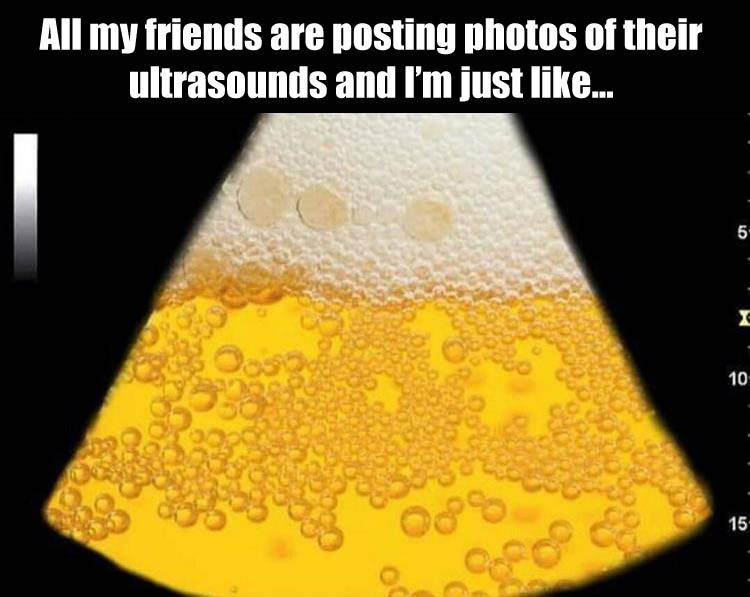 funny-ultra-sound-pictures