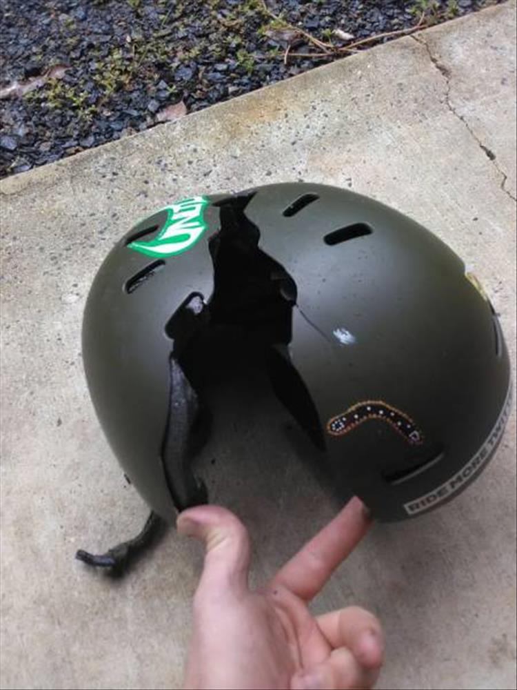 This Is Why You Should Always Wear A Helmet 24 Pics