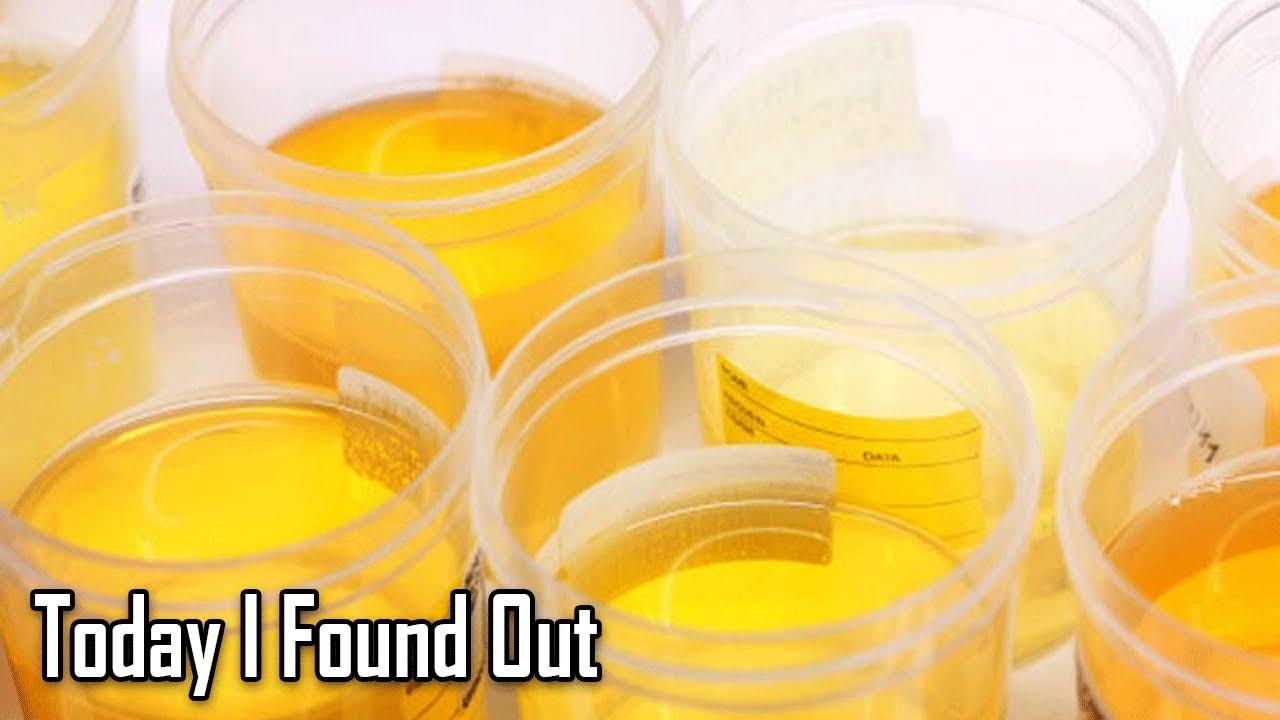 Erudition: Why Do Vitamins Make Urine Bright Yellow